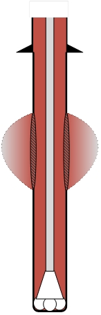 Drilling induced vertical fracture
